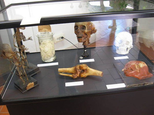 """Museo Anatomico """"Giovanni Tumiati"""""""